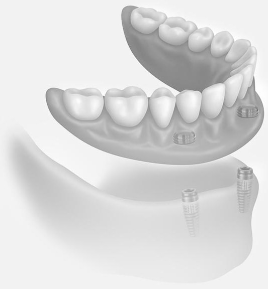 dental implants with dentures