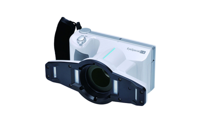 eyespecial dental camera